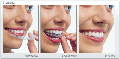 Straighter Teeth with Invisalign®